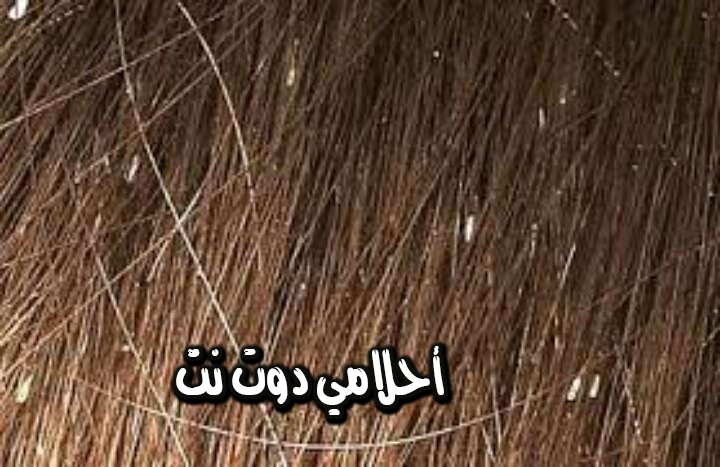 تفسير حلم رؤية الحشرات في شعرك في المنام
