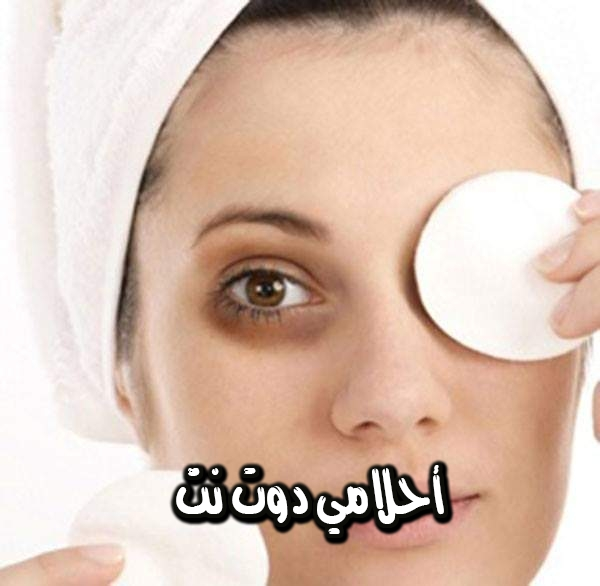 علاجات طبيعية ضد الدوائر السوداء تحت العينين