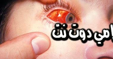 تفسير رؤية العين الواحدة أو المصابة في المنام